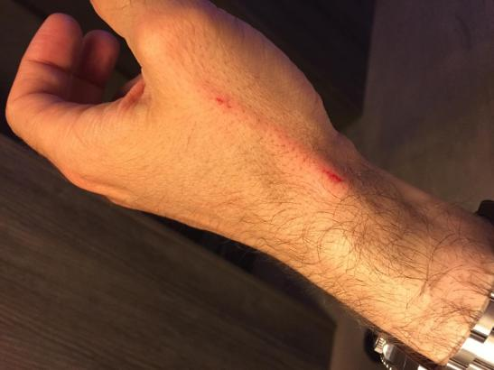 Bei dem Diebstahlsversuch auf Mallorca verletzte sich das Opfer an der Hand.