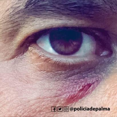Einer der Lokalpolizisten wurde am Auge verletzt.