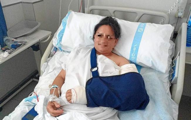 Die Frau liegt im Krankenhaus Manacor.