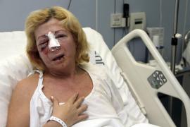 Maria Antonia Salazar liegt mit schweren Kopfverletzungen im Krankenhaus.