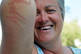 Extremschwimmerin berichtet von Quallen-Attacke