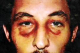 Arzt bestätigt Gewalteinwirkung auf Häftling