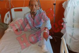 81-Jähriger in Magaluf überfallen und schwer verletzt