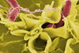 13 Personen nach Lebensmittelvergiftung im Krankenhaus
